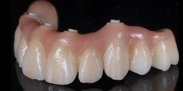 Full Zirconia Implant Screw Retained Hybrid bridge