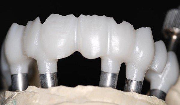 Zirconia Screw Retained Implant Frame Bridge