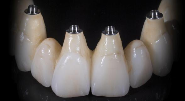 5_Porcelain-Layered-Zzirconia-SCREW-RETAINED-BRIDGE-