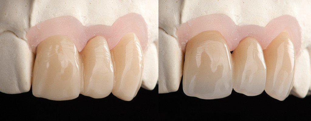 3 Units Provisional Over Implants