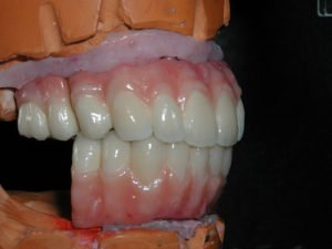 Upper And Lower Implant Bridges